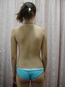 Ребенок 5 лет болит живот в области пупка что делать